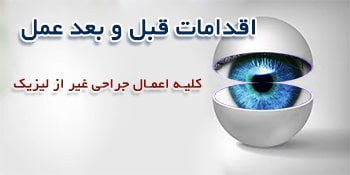 اقدامات قبل و بعد از اعمال جراحی چشم